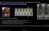 【速搜资讯】里程碑!IBM宣布造出全球首颗2nm EUV芯片