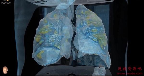 美国医学家用VR带你看被冠状病毒侵蚀后的肺部:损伤超乎想象