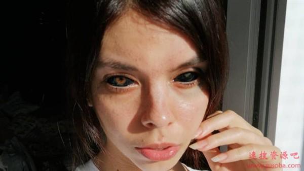 波兰姑娘追求个性将双眼染黑:一只永久失明、一只半残
