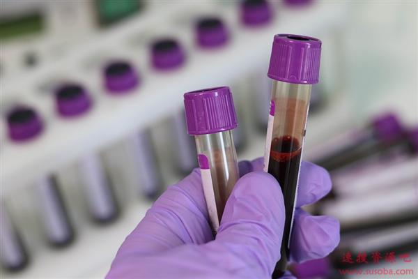 血型大揭秘!一种有多少血型?那种血型最多易生病?